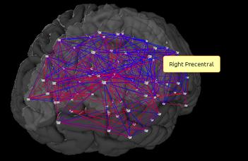 Az agyi kapcsolatok változékonysága