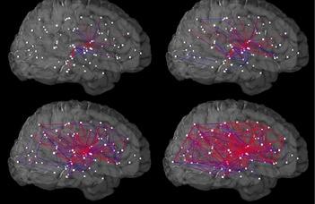 Komoly előrelépést tettek az agykutatás terén az ELTE kutatói