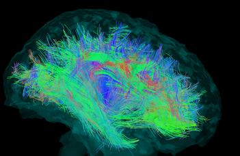 Jobbak a női agy összeköttetései, mint a férfiéi