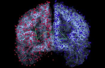 Az agy gyakori részgráfjait azonosították az ELTE kutatói (Origo.hu)